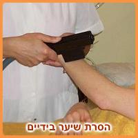 טיפול הסרת שיער בידיים
